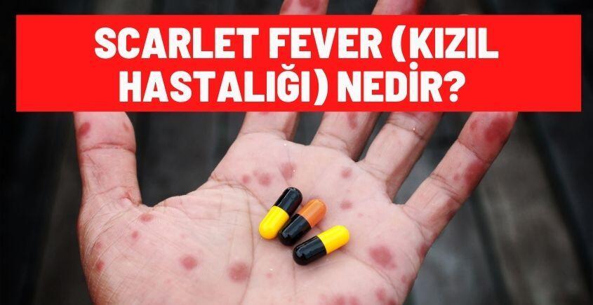 scarlet fever nedir